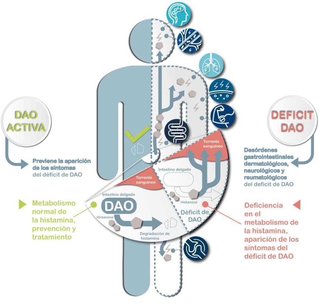 infográfico-déficit-de-DAO-y-patologías-asociadas, diamino oxidasa, histamina, intolerancia a la histamina, fibromialgia, dolores músculo-esqueléticos generalizados, migraña, cefaleas vasculares, dermatitis, piel atópica, piel seca, trastornos gastrointestinales, síndrome de intestino irritable, trastorno de déficit de atención e hiperactividad